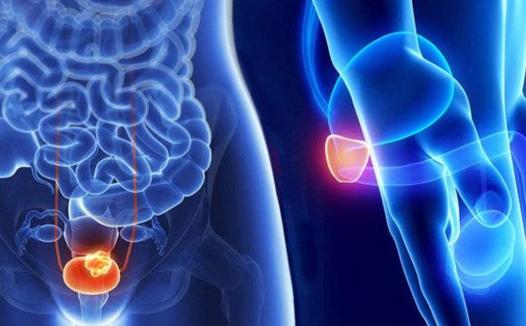 La relación entre los disruptores endocrinos y el cáncer de próstata